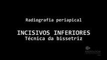 PROTOCOLO DE BIOSSEGURANCA DA TECNICA RADIOGRAFICA INTRAORAL TECNICA RADIOGRAFICA PERIAPICAL DENTES INFERIORES TECNICA RADIOGRAFICA PERIAPICAL DENTES SUPERIORES - Parte 2